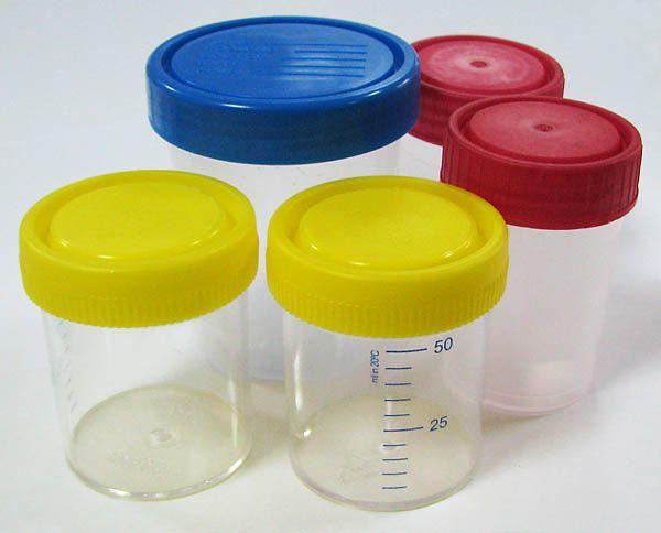 Как собрать мочу ребенка на тест на кристаллурию и бакпосев?