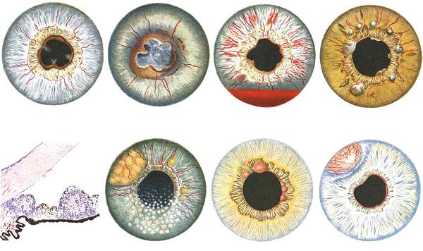 Здравствуйте! Можно ли при серозном пластическом увеите глаза во время воспаления давать физические нагрузки на организм и принимать стероиды???