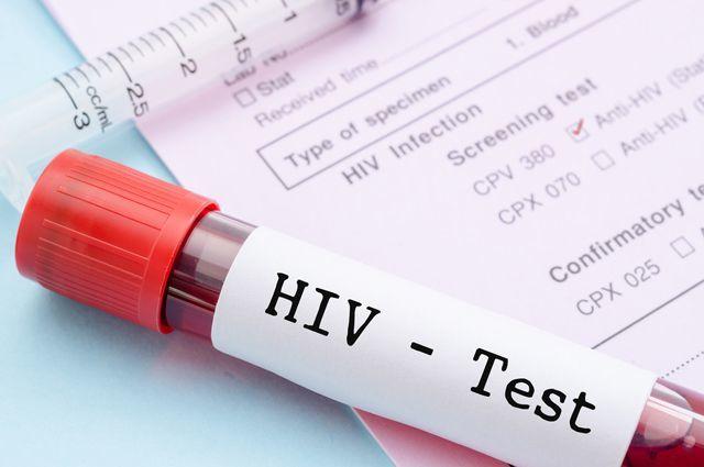 Симптомы ВИЧ у мужчин: как проявляется ВИЧ у мужчин, первые признаки ВИЧ у мужчин