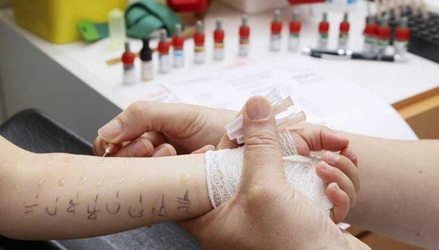 Анализ крови на аллергены — как сдать кровь на аллергены, расшифровка анализа крови на аллергию