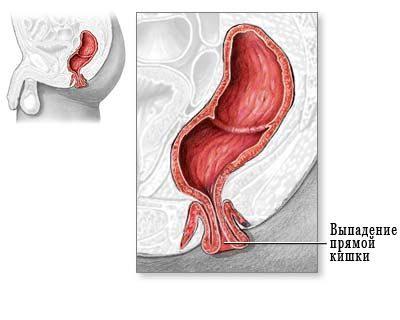 Как лечить ректальный пролапс, который длится 2-3 года?