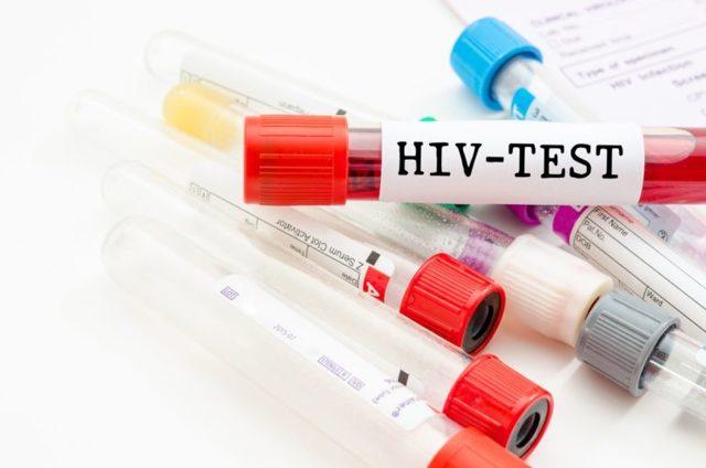 Насколько достоверный анализ на ВИЧ из вены?