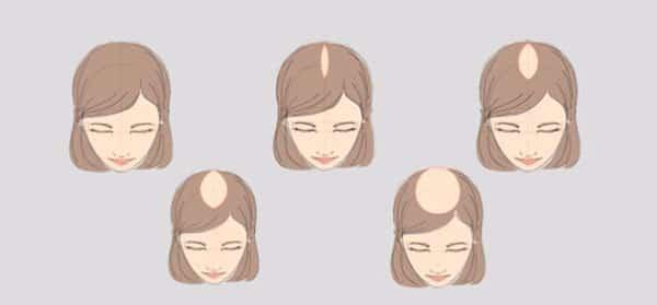 Выпадают волосы - что делать, почему выпадают волосы, средства против выпадения волос
