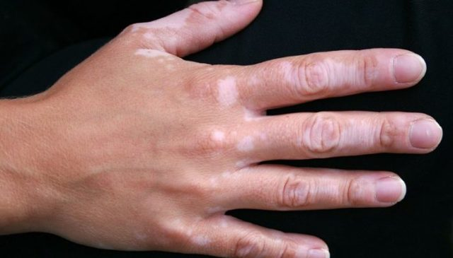 От чего появляются белые пятна на руках