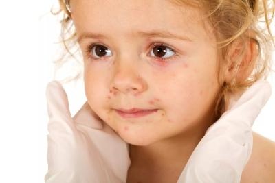 Появляются пузырьки на руках у ребенка, что это такое?