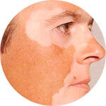 Как называются белые пятна на коже, причины белых пятен на коже, лечение