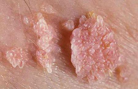 Виды вируса папилломы человека (ВПЧ) и методы его диагностики