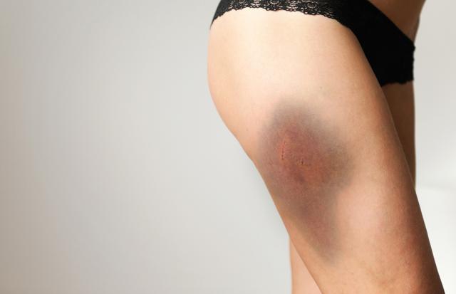 Травмы бедра и тазобедренного сустава: первая помощь и восстановление после травм тазобедренного сустава и берда