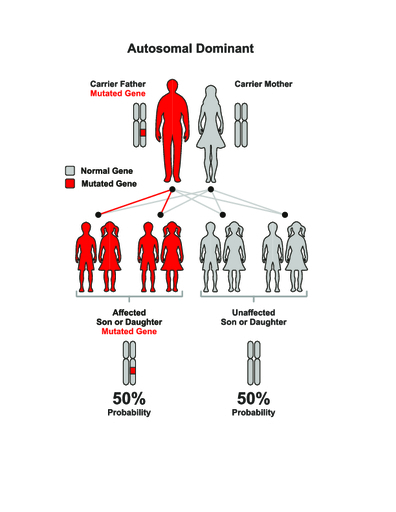 Нейрофиброматоз Реклингхаузена: симптомы и лечение болезни Реклингхаузена 1 и 2 типа