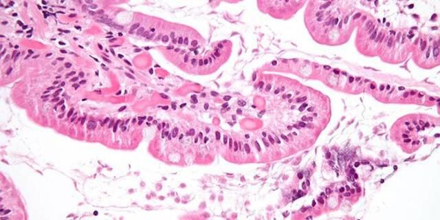 Диагностика протозойных инфекций: классификация простейших, исследуемые материалы, разные методы диагностики, расшифровка результатов анализов.
