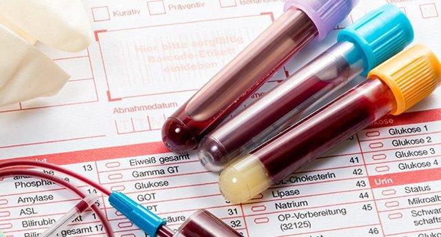 Анализ крови на сахар: как проверить сахар крови, расшифровка результатов анализа крови на сахар