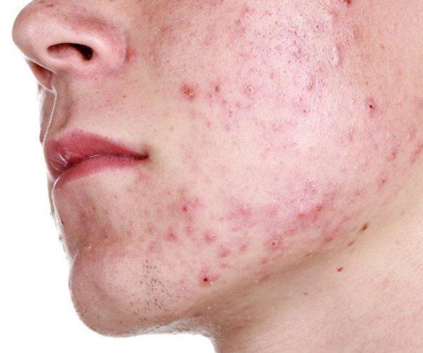 Как подтвердить золотистый стафилококк на коже?