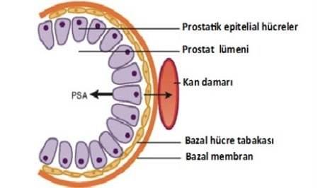 Почему растет ПСА при раке простаты, уровень ПСА после лучевой терапии и операции