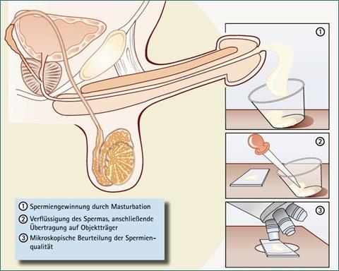 Виды патологий спермы и лечение мужского бесплодия: новые методики и возможности репродуктивной медицины