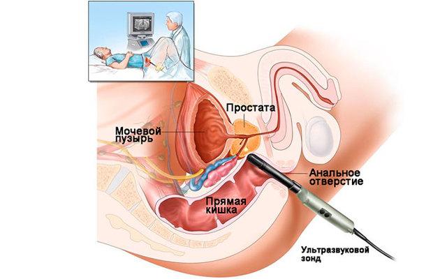 Преждевременная эякуляция, задержка эякуляции, ретроградная эякуляция